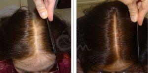 Hairmax lasertherapy foto 5 - Hairmax Lasertherapy Shop